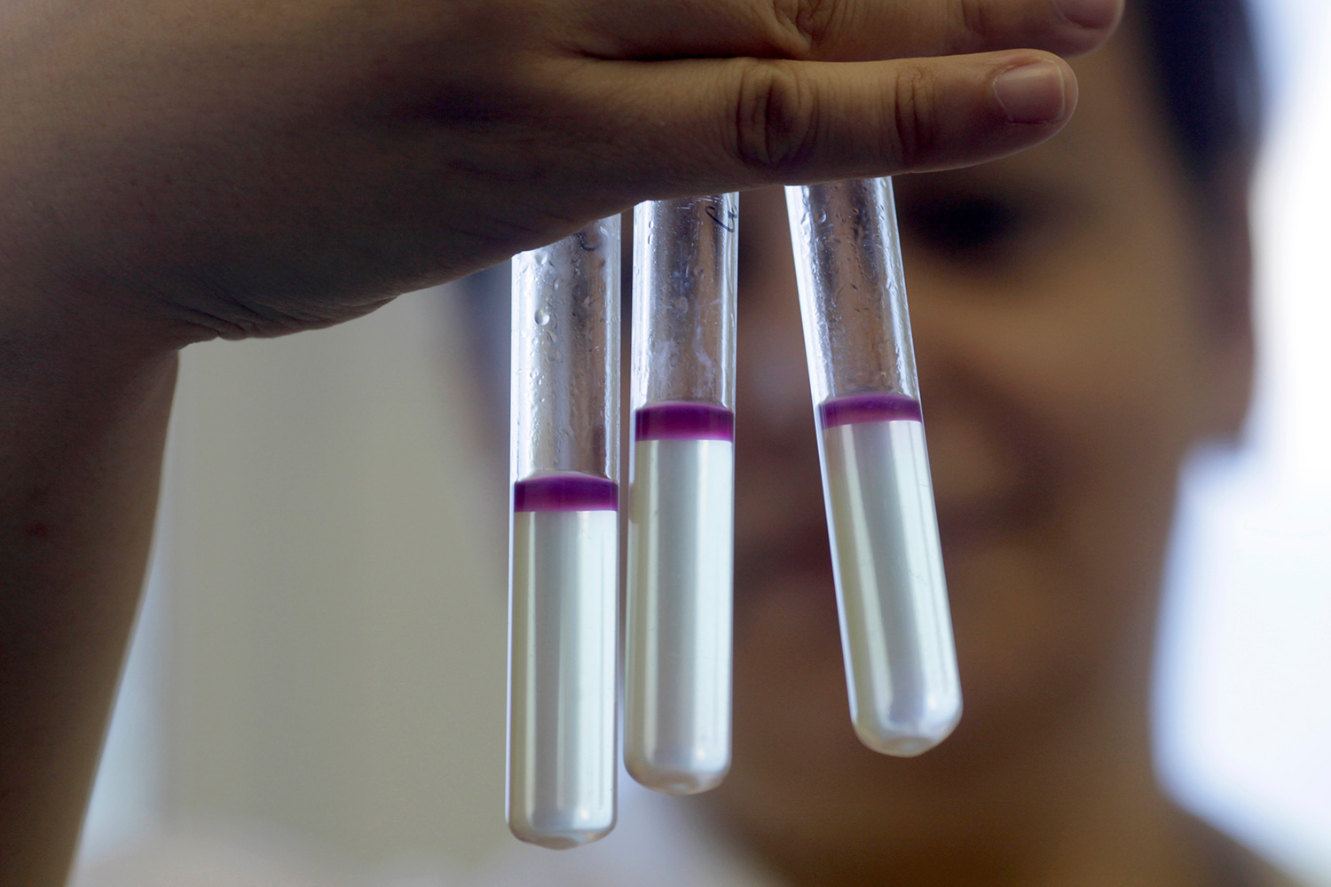 "Researcher Marina Soloviecika holds tubes of a deadly strain of E.coli isolated during an outbreak in Riga, Latvia on June 9, 2011. Many other types of bacteria live safely in or on the human body. The image shows a few testtubes filled with liquid that has a very distinctive purple ""lid."" The researcher can be seen blurred out in the background. REUTERS/Ints Kalnins"