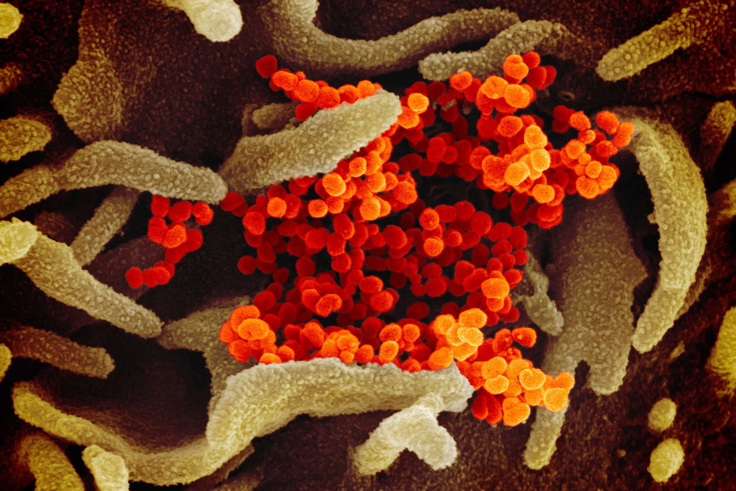 A colorized scanning electron microscope image of the novel coronavirus SARS-CoV-2, also known as 2019-nCoV, which causes COVID-19. Image shows a colorful molecular world with a bunch of worm-like dendrites, presumably biological material like cells, and bright orange cluster of spheres in the middle of the image. NIAID-RML image