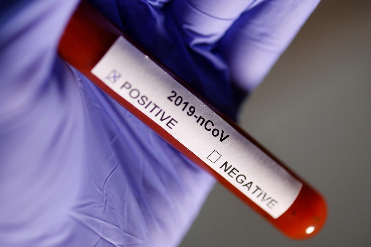 "Photo shows a gloved hand holding a test tube labeled, ""2019 nCoV"" with two boxes ,marked ""Positive"" and ""Negative."" The positive box is checked."