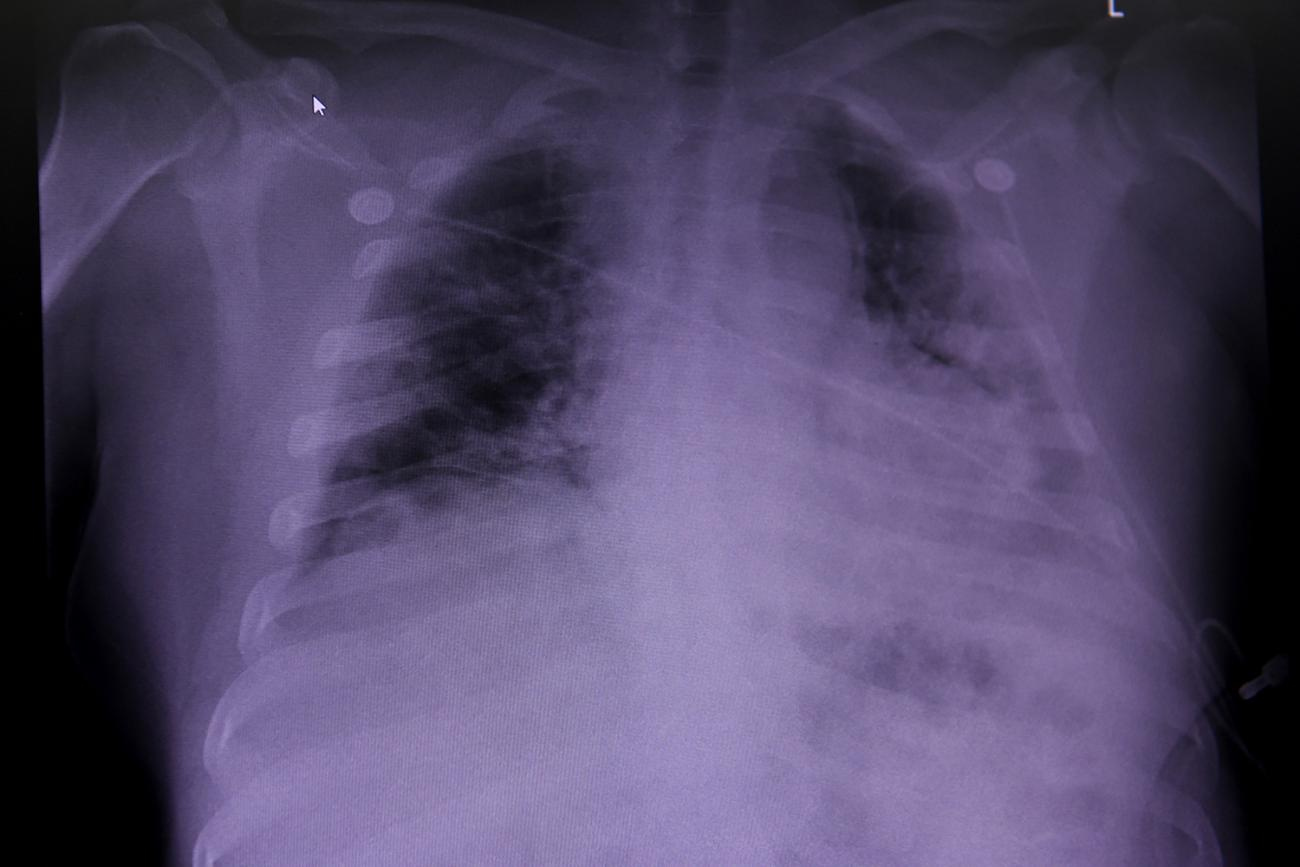 The photo shows a chest X-ray with portions of the lungs appearing very dark.