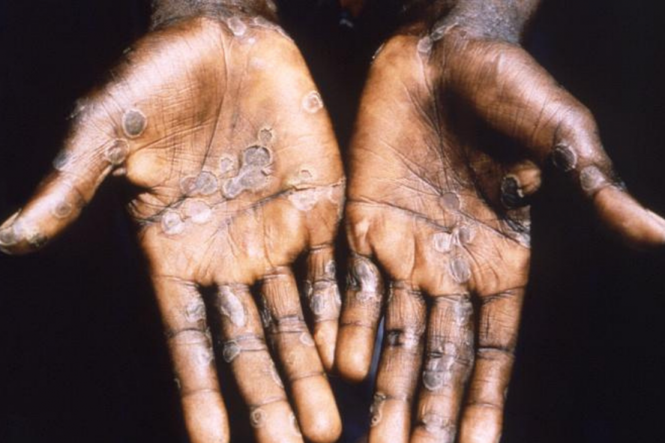 The palms of a person suffering from monkeypox show small circular shaped welts. The rash is strikingly similar to a smallpox rash.